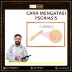 Cara Mengatasi Psoriasis Dengan Jelly Gamat Bio Gold